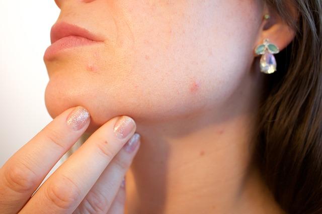 akné na obličeji v dospělosti