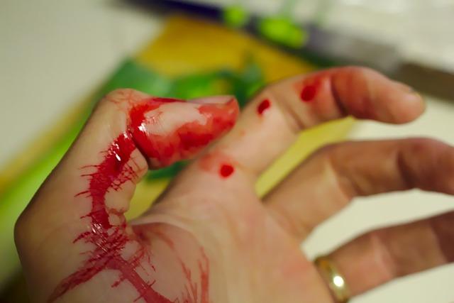 krev na ruce